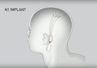"The behind-the-ear implant, called ""N1,"" can be inserted through a 2mm incision behind the ear. The surgery can be performed while the patient is awake, and it's supposedly about as traumatic as LASIK."