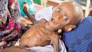 Number of Malnourished Children in Somalia Rose 40% in Feb
