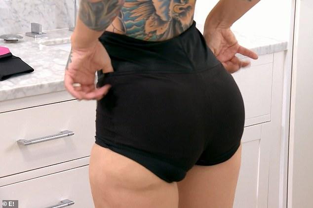 Exotic dancer reveals saggy, misshapen butt after injections