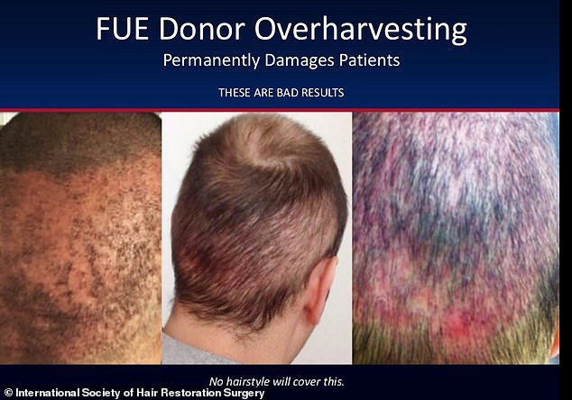 This man's hair was simply not fixed by the procedure, which appears to have caused unnecessary damage to his scalp and left him with thin, patchy hair
