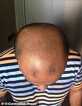 Faisal Hamid, a banker from Bury in Manchester, paid £1,500 for a hair transplant in Turkey
