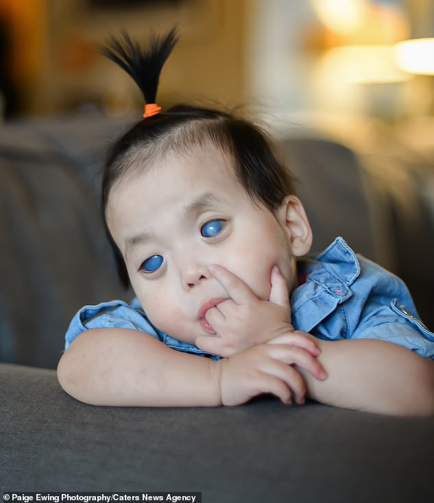 Primrose Austin, who was adopted from an orphanage in China in 2016, had striking silver eyes due to untreated childhood glaucomas