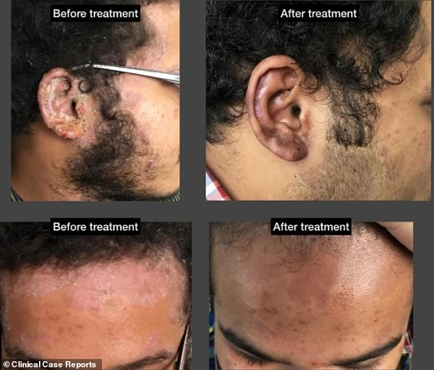 The unidentified 18-year-old was battling crusty patches of skin around his scalp, which had spread to his ears. He reportedly saw results in five months of starting homeopathy