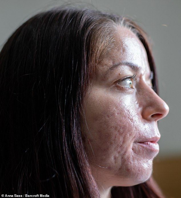 Miss Keel, pictured in June, said she feels herself again since her skin has cleared