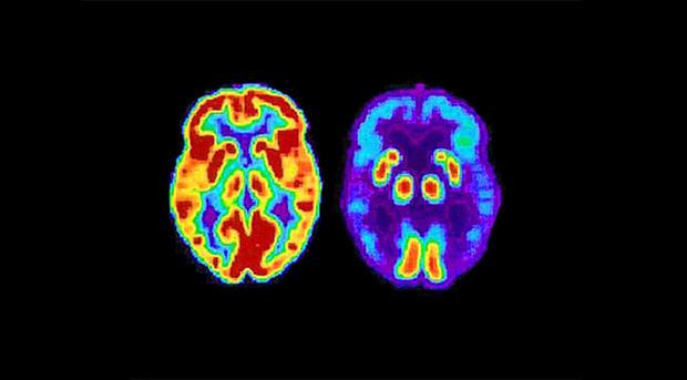 PET scans showing the differances between a normal older adult s brain and the brain of an older adu...