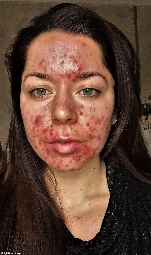 Emily Keel, 24, from Portsmouth, who was told by a doctor she had the 'worst acne he's ever seen' has shared her transformation after trying a new regime