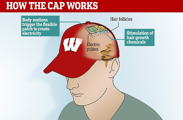 The hat contains a built-in patch which sends electric pulses to the scalp when triggered by motion, promoting natural hair growth chemicals in the skin