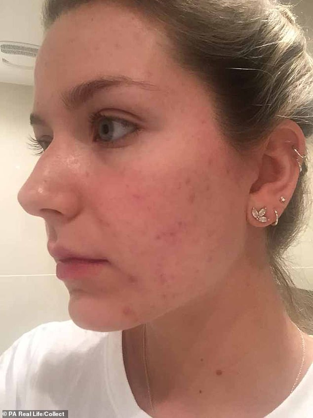After having a form of contraceptive coil fitted in 2016 when she was 20, Ms Bouchard said her spots flared up uncontrollably, particularly on her face