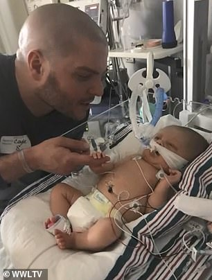 Carson Coyle, 8 months, of New Orleans, Louisiana, was born earlier than expected in March 2019. Pictured: Carson shortly after being born