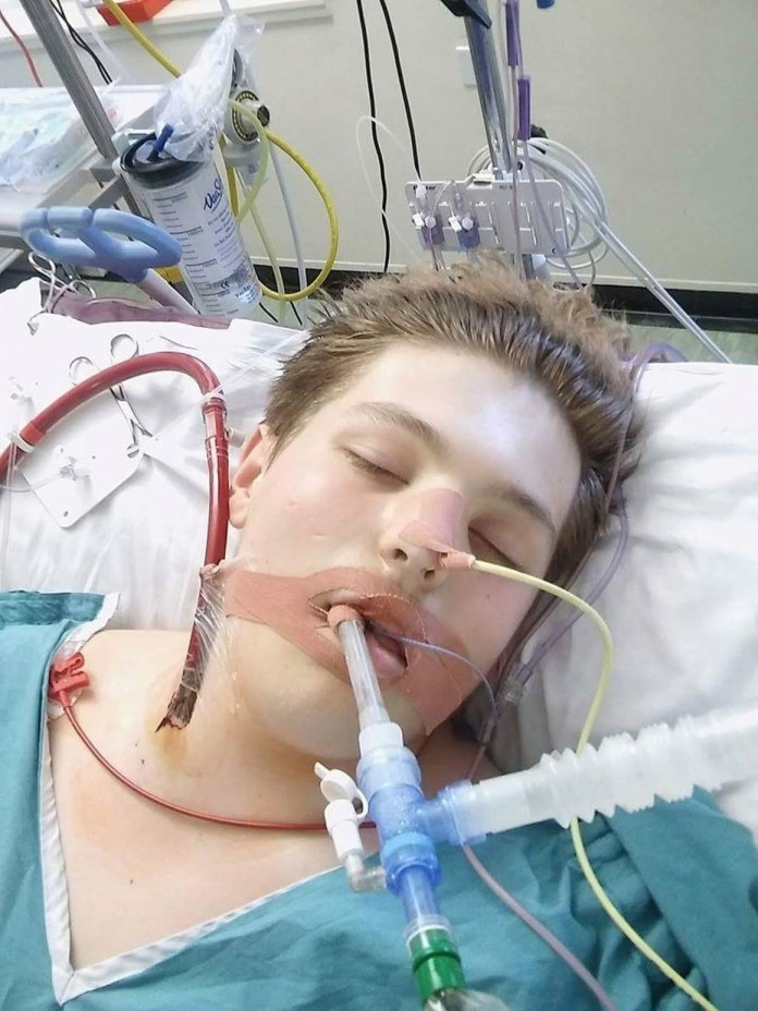 Ewan Fisher, 16, suffered 'catastrophic' respiratory failure after taking up e-cigs