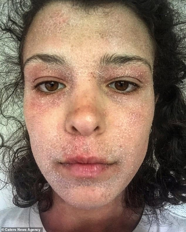 Alice Burleigh, 23, relied on steroids to clear up her eczema for eight years. But she noticed her skin was only getting worse. She is pictured during her withdrawal
