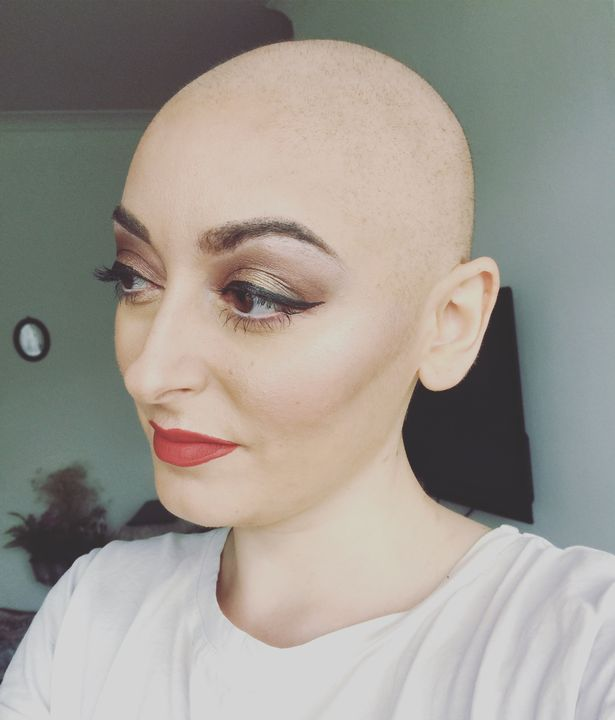 Kaz with bald head during her first treatment
