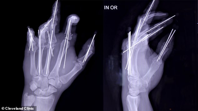 Because he had put his left hand up to protect his face from the still spinning blades, it was cut off. Pictured: X-ray of Brittain's left hand