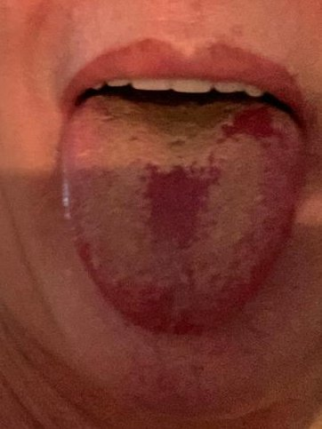 The unusual symptom can include a swollen tongue, small red or white bumps and unusual mouth ulcers