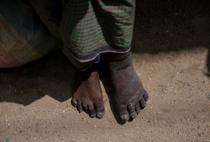 How Kenya S Fight Against Elephantiasis Is Becoming A