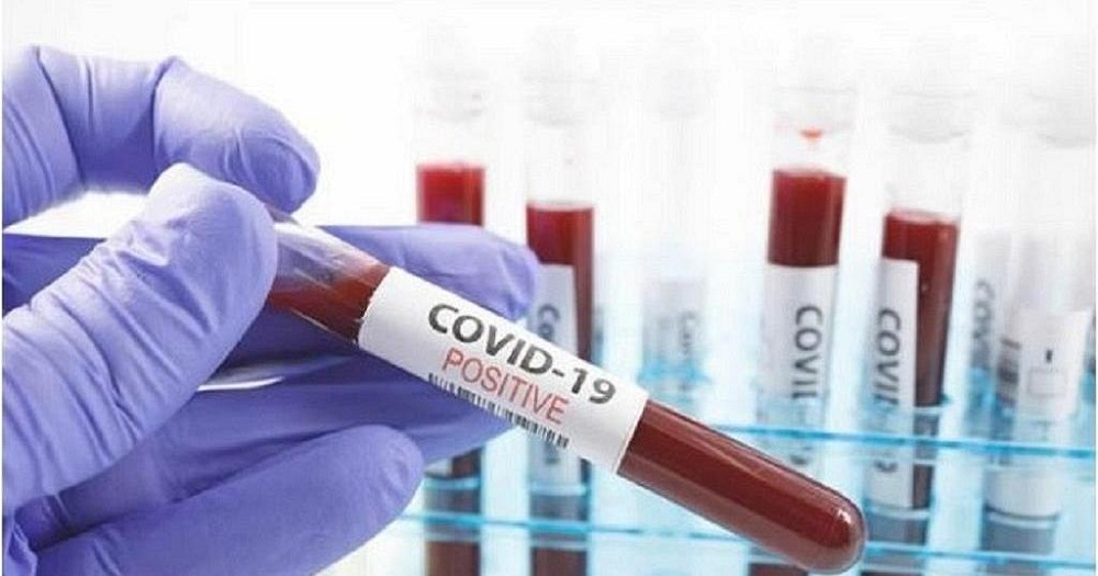 The number of COVID 19 cases in Uganda are now at 732 after 8 more new cases were discovered from 2,526 samples tested on 16 June 2020.