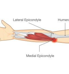 a medial epicondyle on the inside of your elbow this is the tendon responsible for bending and locking your wrist in a forward or flexed position  [ 6000 x 3875 Pixel ]