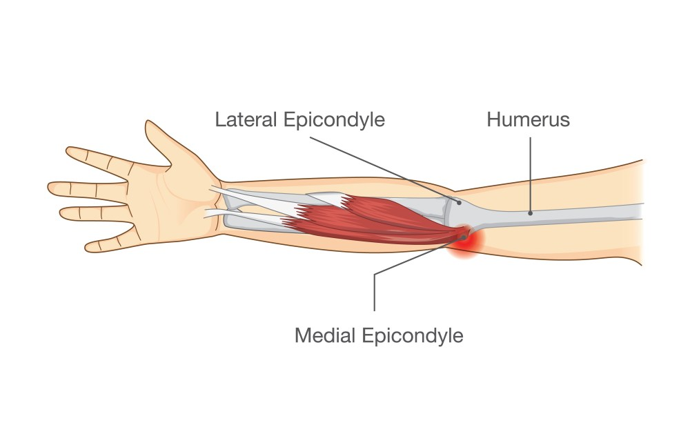 medium resolution of  a medial epicondyle on the inside of your elbow this is the tendon responsible for bending and locking your wrist in a forward or flexed position