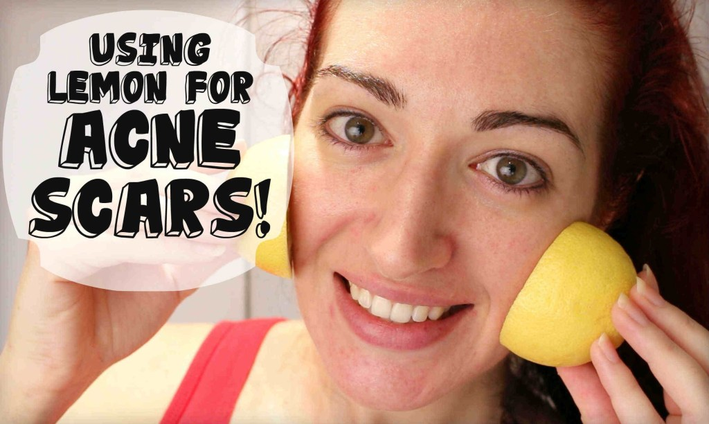 5 Ways - Get Fair Skin Naturally (Amazing Tips & Home Remedies)
