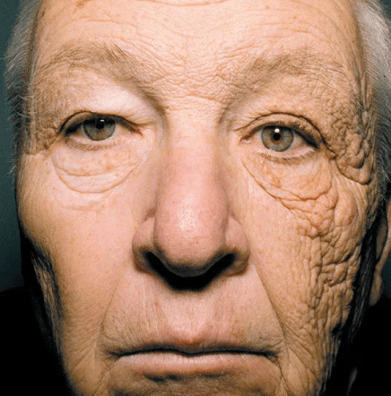 how to get better skin - wear sunscreen. picture of trucker with one side that was exposed to the skin and is saggy and aged and the other side not facing the sun