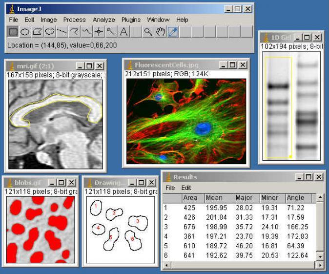ImageJ Screenshots - BytesIn