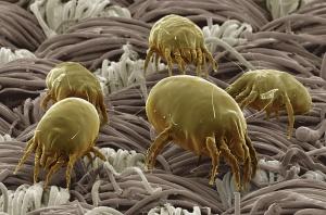 Acarieni vazuti la microscop 500x