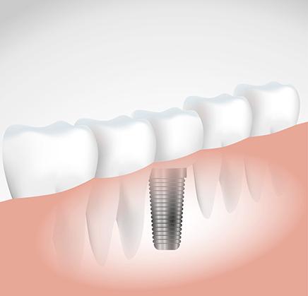 La consultation pré implantaire