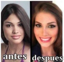 Así era Miss Universo antes de hacerse cirugías