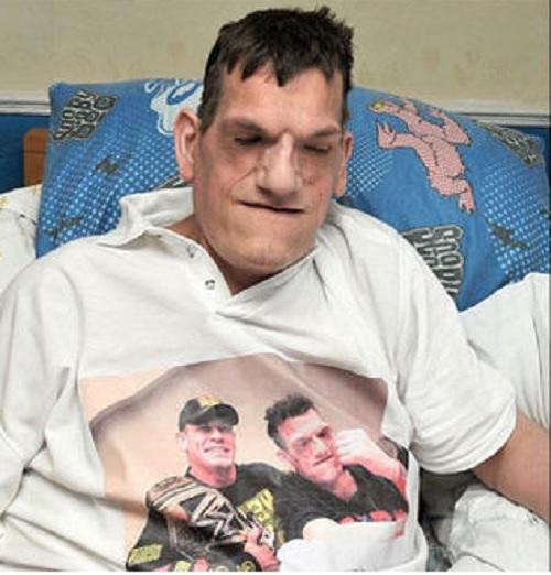 Robert tiene 24 años y sufre el síndrome de Proteus