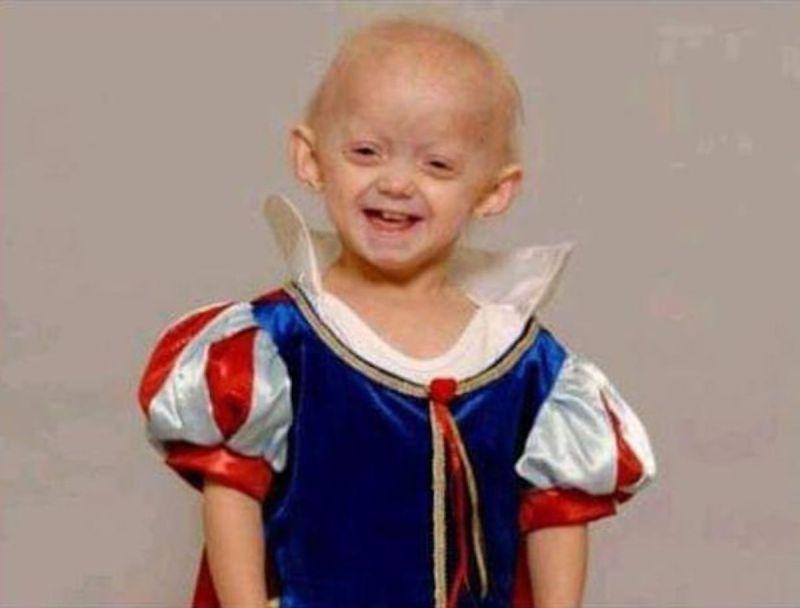Ashanti Smith morta progeria malattia Benjamin button