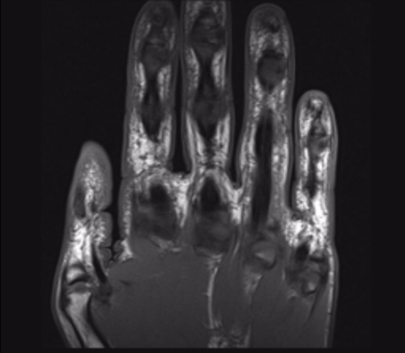 This scan shows the palm side of the hand. The tendon in the ring finger is more visible because if is bowstringing away from the bone