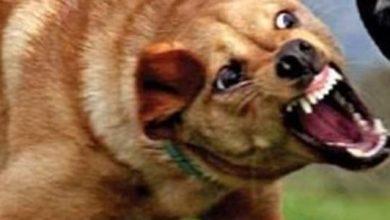إصابة طفل تعرض لعقر كلب ضال بالسلام.. واستغاثة عاجلة لرئيس الحي