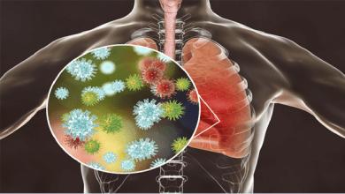 Photo of وزارة الصحة: 445 حالة إيجابية جديدة لفيروس كورونا.. و 22 حالة وفاة