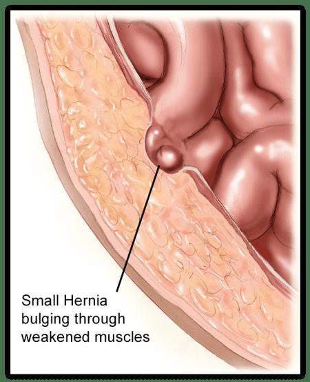 Pengobatan Tradisional Hernia