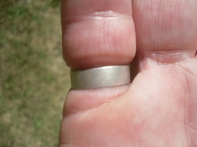 Too small ring denting a finger. Remove a ring.