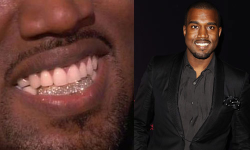 eight diamond teeth for Kanye West