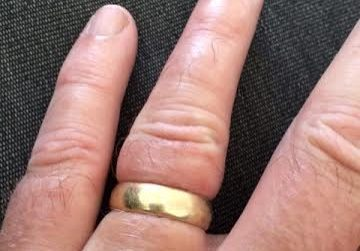 Too tight man's wedding band
