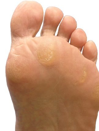 Plantar callus at the base of the foot