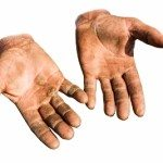 Why Calluses On Hands Appear And How To Stop Them