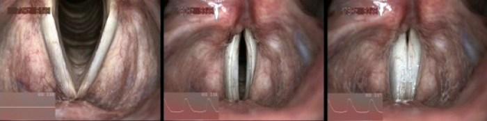 Observation des cordes vocales