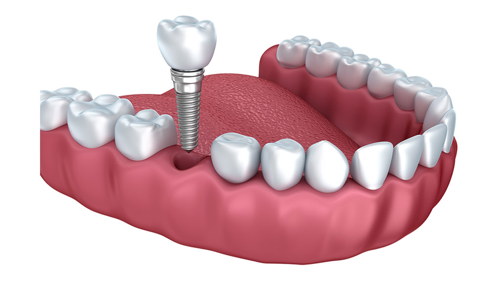 Dental Implants Chester & Wexham   Cambria Dental Practice