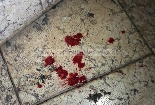ULTIMORA/ Monterusciello, rissa tra ragazzi: due minorenni feriti