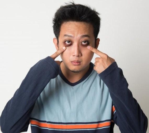 Cuidados de Grooming Para um Encontro Perfeito - Olheiras