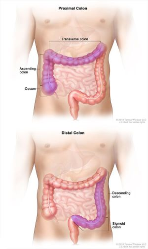Colorectal Cancer Survival Linked to Tumor Location  National Cancer Institute