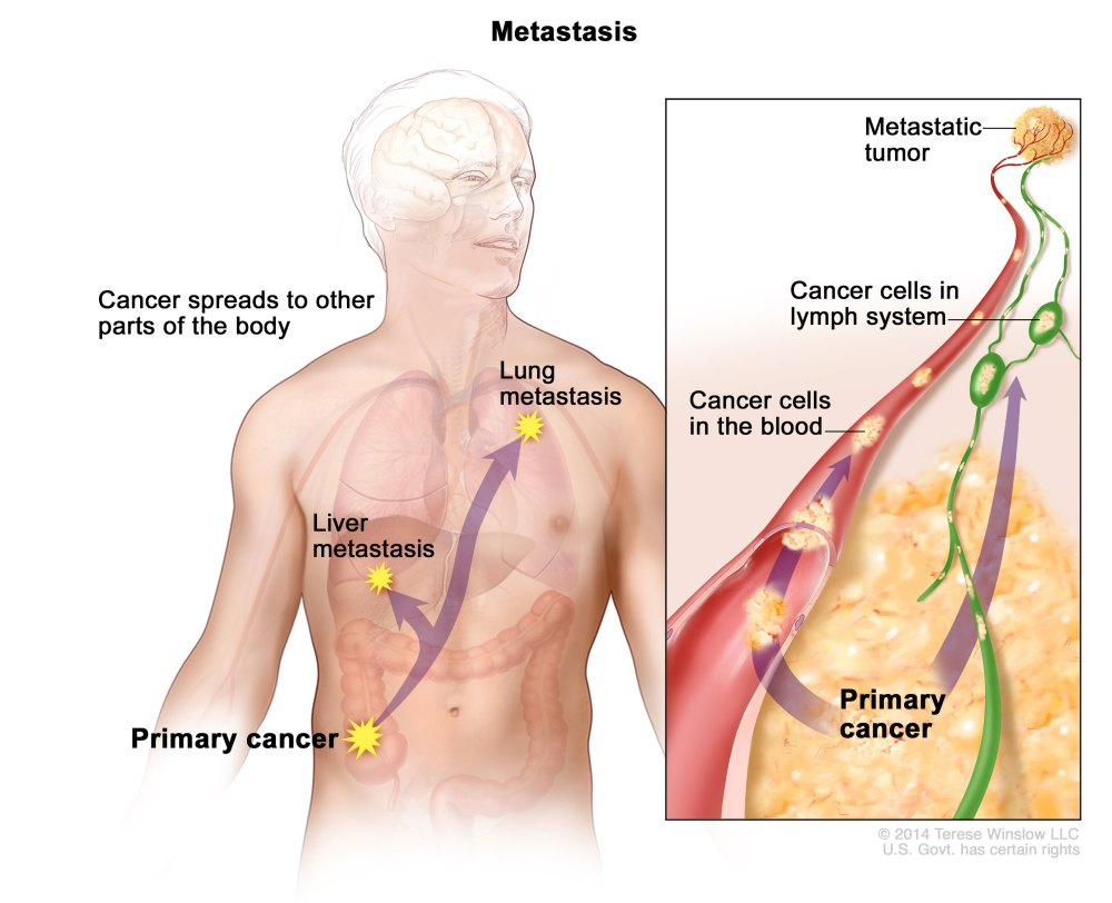 medium resolution of in metastasis cancer cells break away from where they first formed primary cancer travel through the blood or lymph system and form new tumors