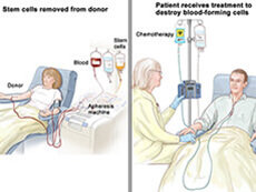 patient receiving stem cell transplant