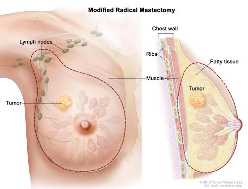 small resolution of enlarge modified radical mastectomy