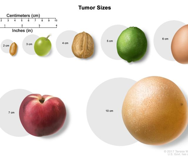 Tumor Sizes The Size Of A Tumor May Be Compared To The Size Of A Pea 1 Cm Peanut 2 Cm Grape 3 Cm Walnut 4 Cm Lime 5 Cm