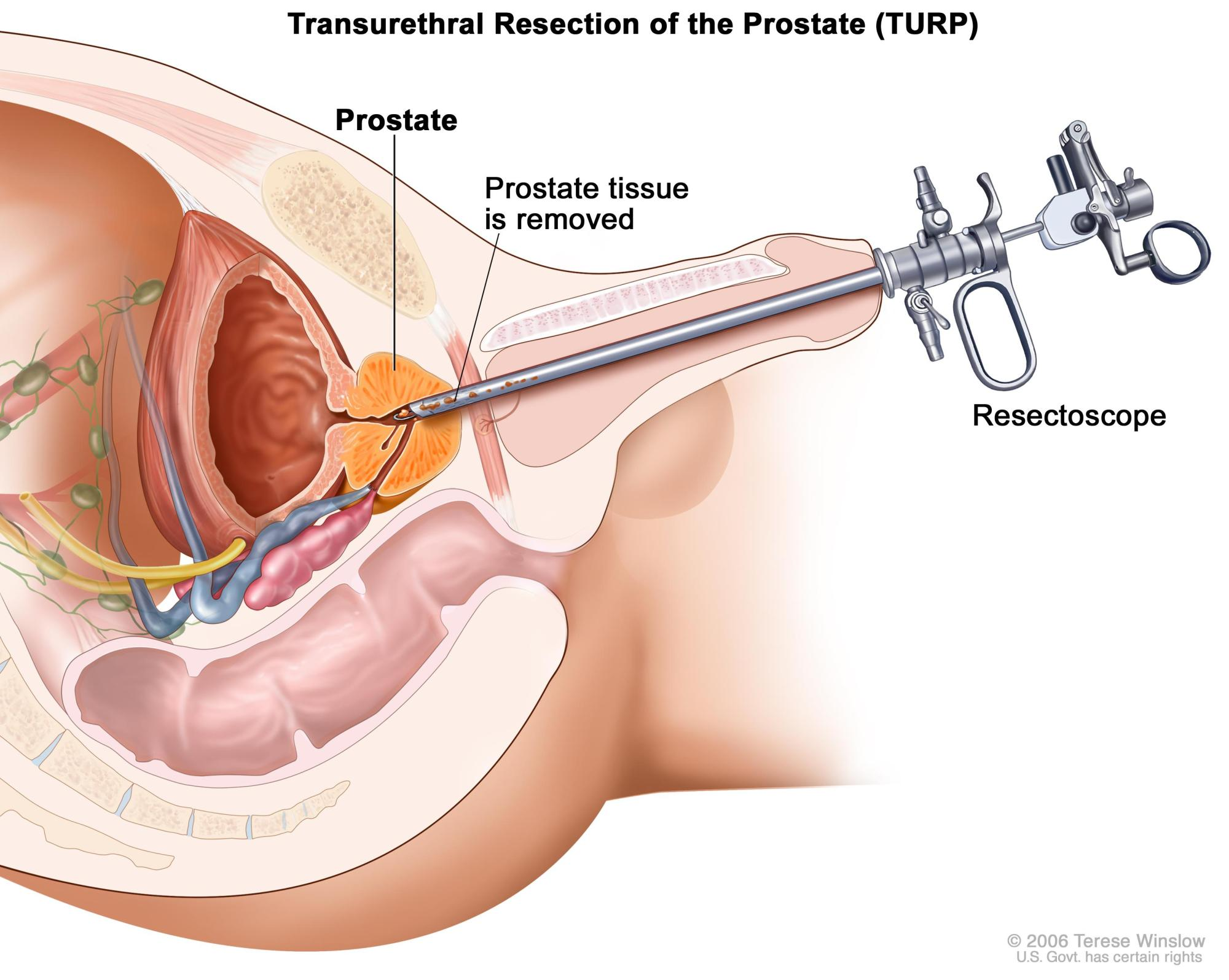hight resolution of transurethral resection of the prostate turp tissue is removed from the prostate using a resectoscope a thin lighted tube with a cutting tool at the