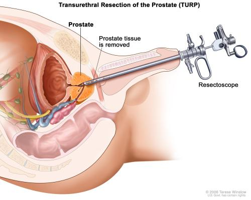 small resolution of transurethral resection of the prostate turp tissue is removed from the prostate using a resectoscope a thin lighted tube with a cutting tool at the